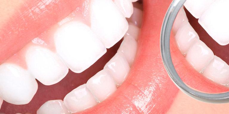 Prevención e Higiene Oral